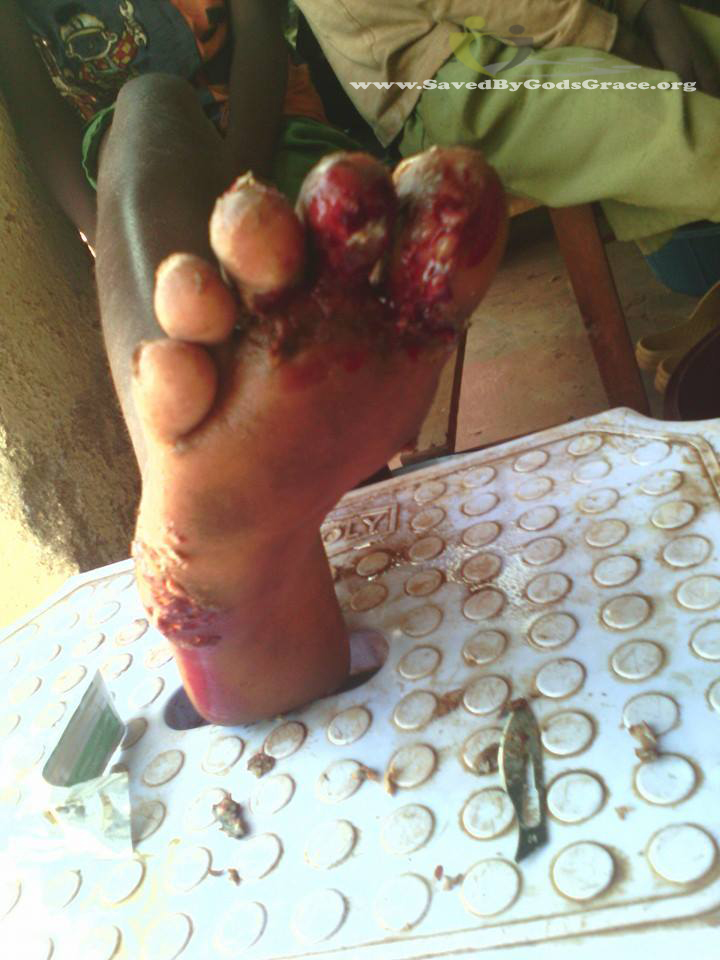treated foot from jiggers
