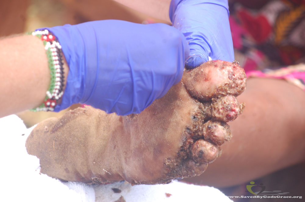 grandmothers-feet-with-jiggers